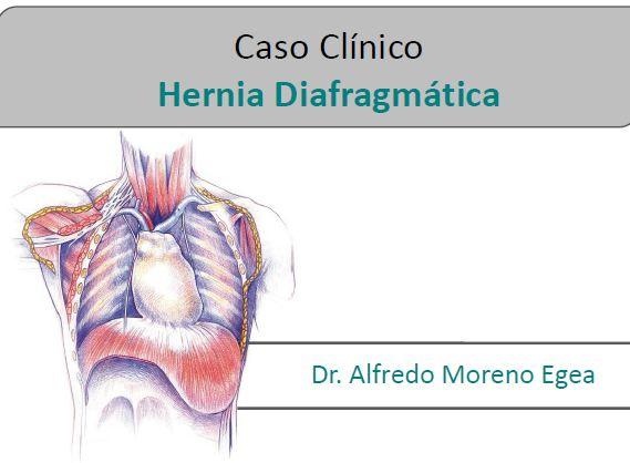 Caso de Hernia del diafragma para web